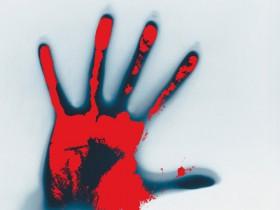 「Webサイト改ざん。攻撃手法と被害の種類」のイメージ画像